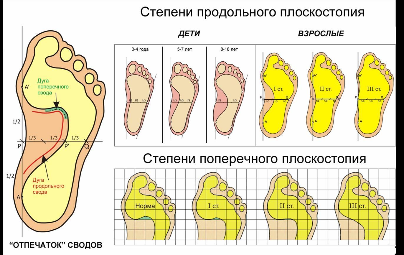проверьте свои стопы
