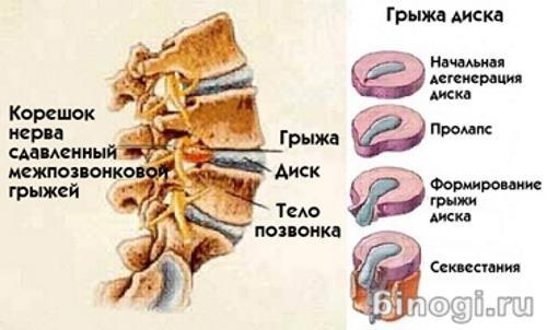 gryga-megpozvonkovyh-diskov-1